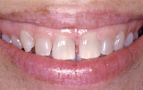 Periodontal plastic surgery before.