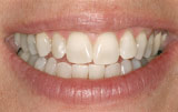 Teeth whitening after.