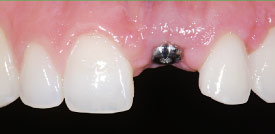 Dental implant abutment.