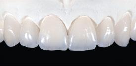 Dental laboratory porcelain veneers.