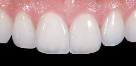 Porcelain veneers after.