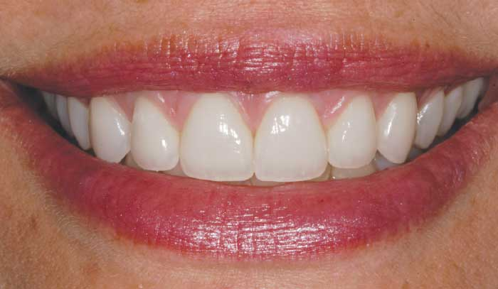 After porcelain veneers.