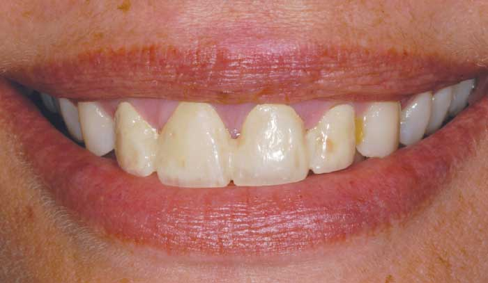Before porcelain veneers.