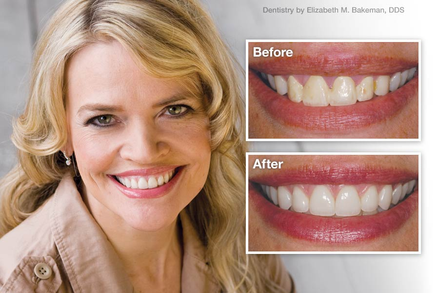 Porcelain Veneers - Before and After.