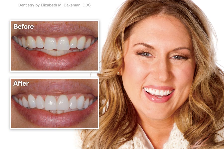 Porcelain Veneers - Patient Before and After.