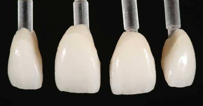 Thin porcelain veneers.