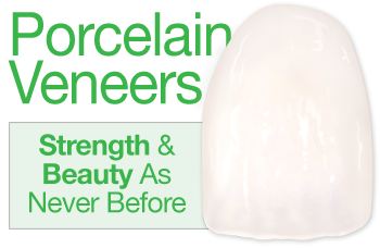 Porcelain Veneers.