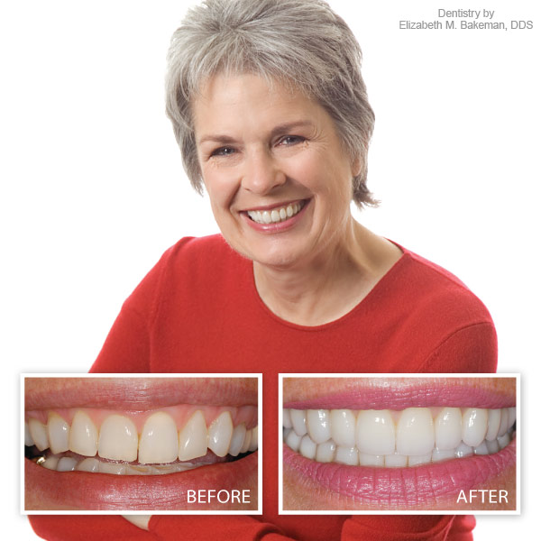 beauty veneers