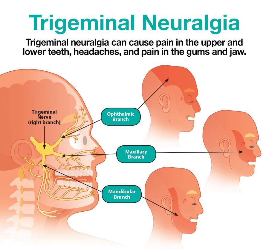 Trigeminal Neuralgia.