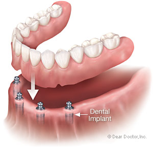 Denture with 4 dental implants.