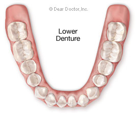 Lower denture.