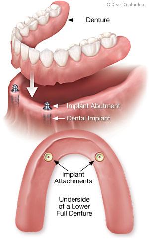 Removable full denture.