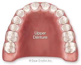 Upper denture.