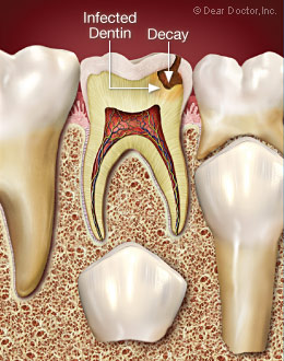 Infected dentin.