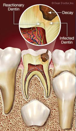 Reactionary dentin.