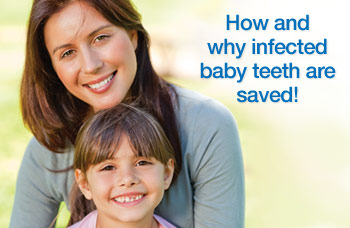 Root canal treatment for childrens teeth.