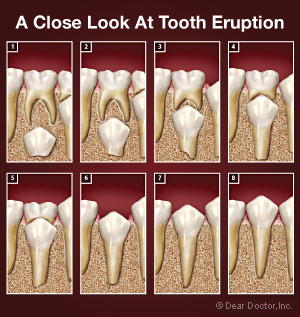 Tooth eruption process