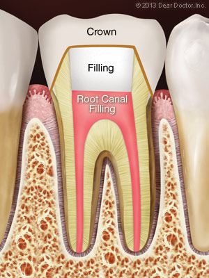 Root canal filling material (gutta percha) is placed in the canals and the tooth is sealed with a temporary filling to protect it from contamination.