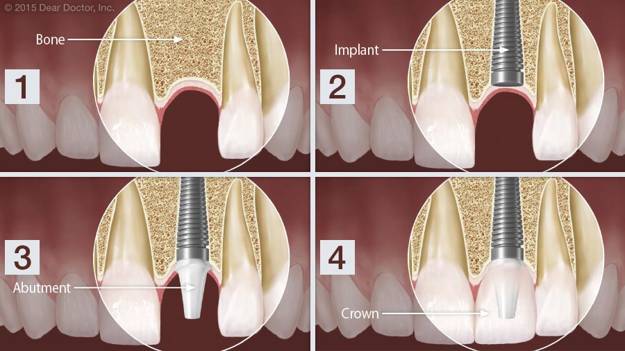 Dental implants step by step.