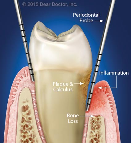 Gum disease and bone loss.