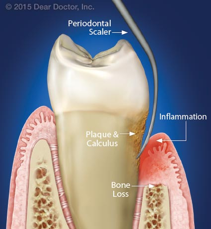Periodontal scaler removing plaque.
