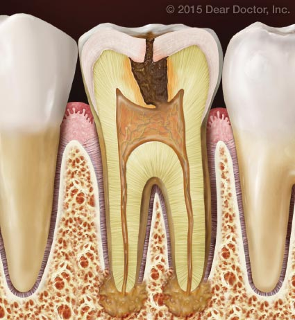 Tooth decay causing infection.