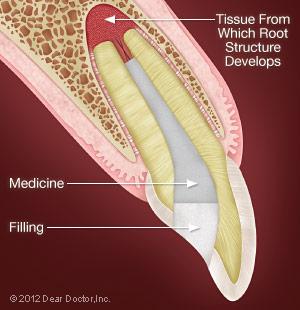 Deeper Pulpotomy.