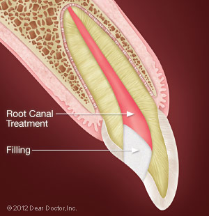 Root Canal Procedure.
