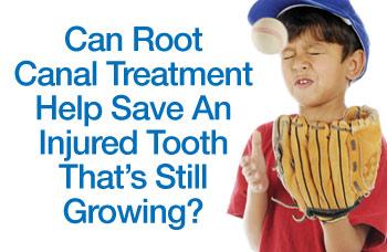 Saving New Permanent Teeth After Injury.