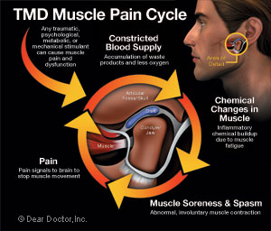 TMD muscle pain cycle diagram.