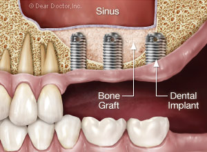 Sinus Surgery - Imaging the Sinus and Sinus Surgical ...