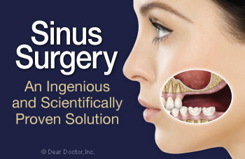 Sinus surgery and dental implants.