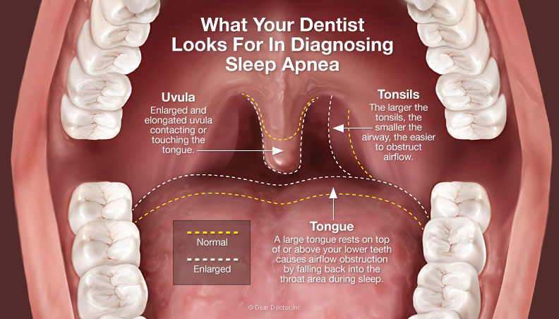 Sleep Disorders And Dentistry What To Watch And Listen For