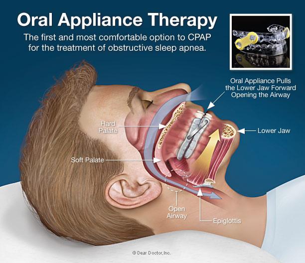 Dental appliance sleep apnea cost