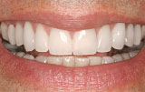 After veneers - Figure 5.