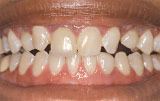 Before veneers - Figure 1.