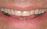 Before veneers - Figure 4.