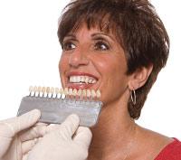 Dental veneer shade guide.