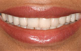 Hollywood white veneers - Figure 2.