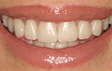 Natural veneers - Figure 9.