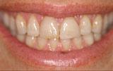 Original smile - Figure 8.