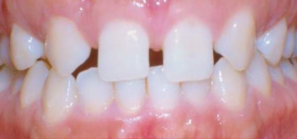 Before clear aligner treatment.