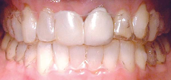 Clear aligner temporary tooth.