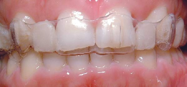 Clear aligner treatment.
