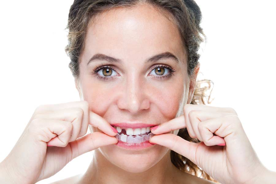 Straightening a smile with clear aligners.