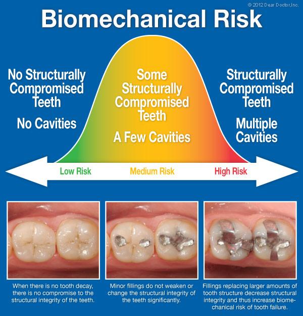 Biomechanical Risk.