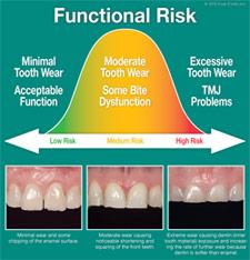 Functional Risk.