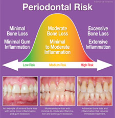 Periodontal Risk.
