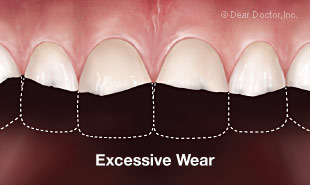 Excessive tooth wear