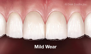 Mild tooth wear